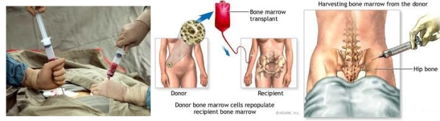 boneMarrowTransplant