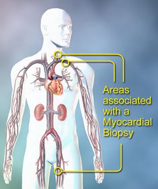myocard_biopsy
